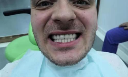 Пациент после протезирования зубов