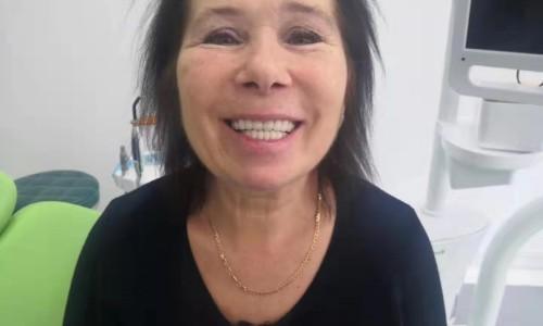 Пациентка после зубного протезирования